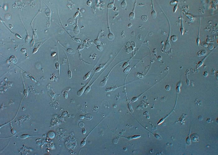 Acides Gras Essentiels et fertilité masculine
